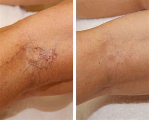 dallas vein removal doctor varicose veins spider veins