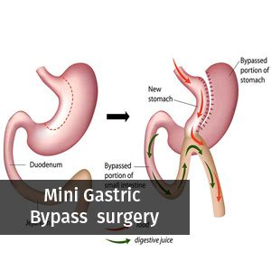 Does Iehp Cover Gastric Bypass Surgery