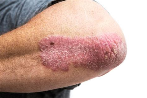 What is Plaque Psoriasis, causes
