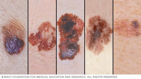 asymmetric moles  melanoma detailed guidelines scary