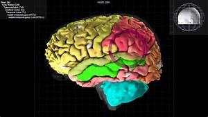 Lobulo Temporal - Caracteristicas Y Funciones