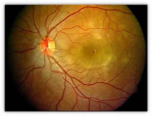 APMPPE With Serous Macular Detachment - Retina Image Bank