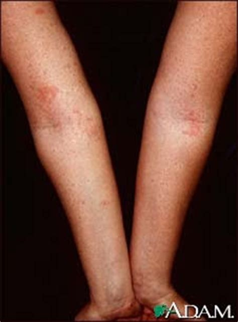 adkpathcourse skin lesions