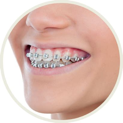 colors of braces convey more with color what colors of braces should you