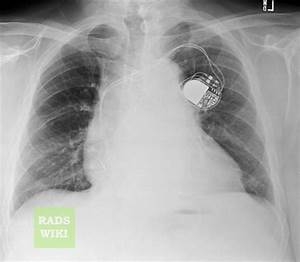 Pericardial effusion chest x ray - wikidoc