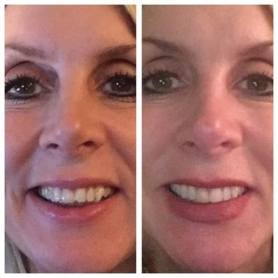 5 Honest Invisalign Before & After Reviews  All New Teeth