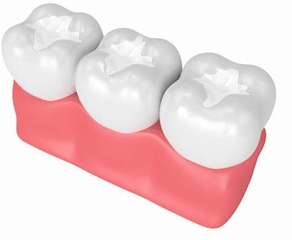 Dental Sealants Children Because
