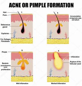 Formation Of Skin Acne Or Pimple  U2014 Stock Vector