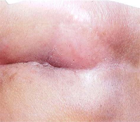 pilonidal cyst pilonidal disease pictures photos