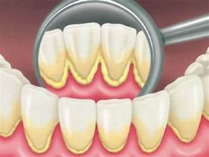 Dental Caries | List of High Impact Articles | PPts ...