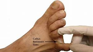 Home Remedies For Corns And Bunions On Feet That Really Work