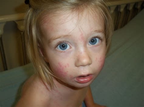 Rash On Toddlers Face Pictures Photos