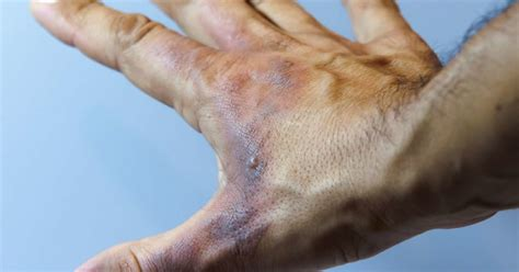 First-degree burn: Definition, symptoms, and treatments