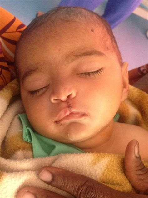 Cleft Lip Charity We Work The Fantastic Work Of The Northern Cleft Foundation
