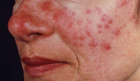 Rosacea Images Rosacea Org Home Of The National Rosacea Society
