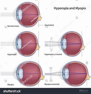 Common Eye Defects   Myopia And Hyperopia Stock Vector