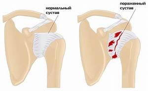 Боли в плечевом суставе чем лечить