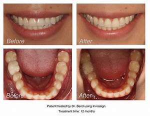 Invisalign Before and After | Baird Orthodontics