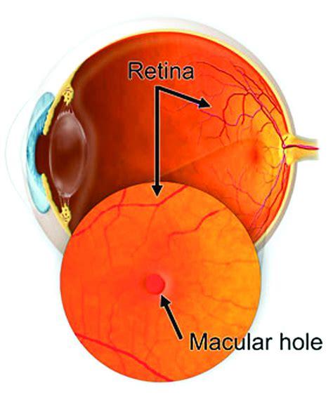 northern california advanced surgery center macular hole
