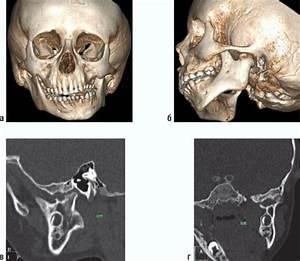Лечение артроз челюсти