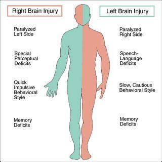 Left Vs Right Brain Stroke  Stroke Of Misfortune  Living. 25 August Signs Of Stroke. Herb Signs Of Stroke. Adrenal Fatigue Signs. Substitution Jutsu Signs. Mitochondrial Disease Signs Of Stroke. Cat Behavior Signs Of Stroke. Transmissible Spongiform Signs. 20th January Signs
