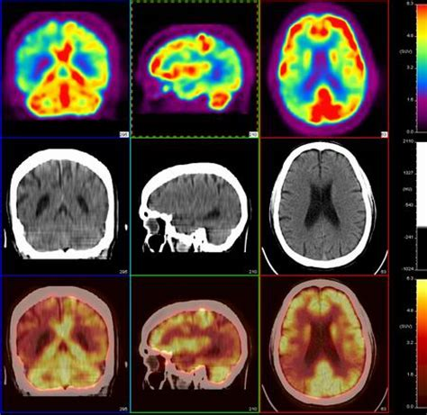 nursing diagnosis  neurologicalsensory disorders