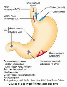 Causes of upper gastrointestinal bleeding - An Illustrated ...