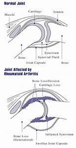 Understanding Juvenile Rheumatoid Arthritis -- the Basics  Juvenile Rheumatoid Arthritis Rheumatoid Arthritis