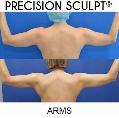 Arms Sculpt Precision Before Months Patient Sculpting