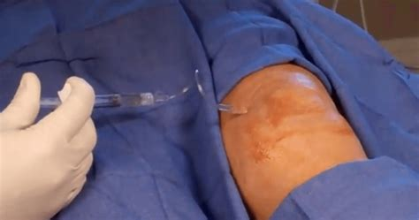 synvisc knee injection  arizona pain specialists