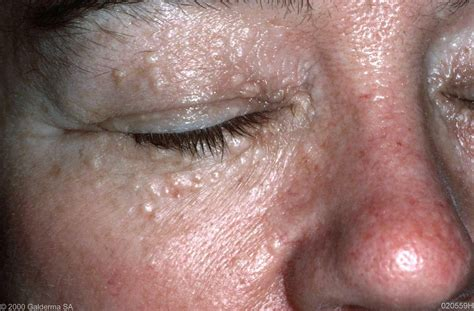 Syringoma Pictures Pictures Photos