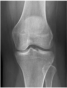 X-knee