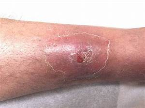 Infected Wound - Bing images