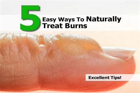 5 Easy Ways To Naturally Treat Burns