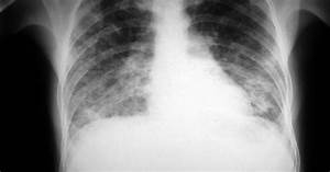 Bilateral Lower Lung Disease  Differential Diagnosis  11