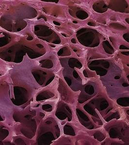 Spongy Bone  Sem Photograph By Steve Gschmeissner