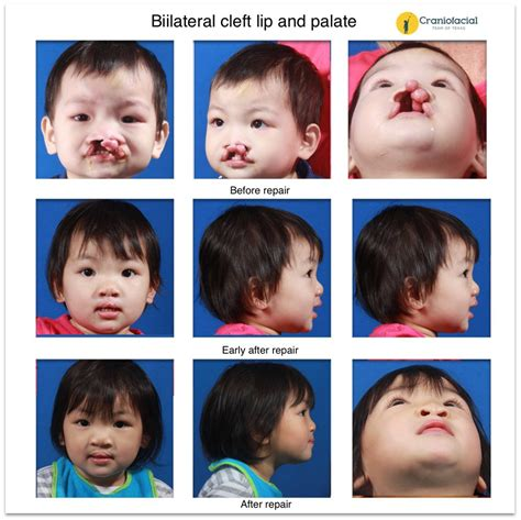 Cleft Lip And Palate Gallery Craniofacial Team Of Texas