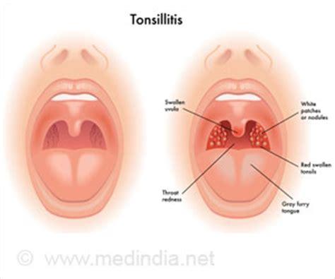 amoxicillin for tonsillitis dosage metformin 750 mg er