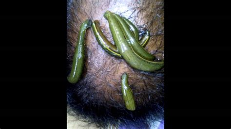 leech therapy for hair fall baldness exema psoriasis