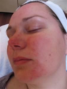Rimpels in het gezicht verminderen; direct resultaat Mens