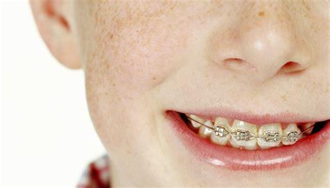 kids  braces   afford