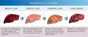 Risk  Prevention  U0026 Screening Of Liver Cancer