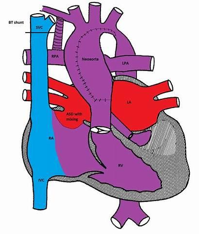 Norwood Procedure Heart Cardiac Cardiology Hlhs Surgery