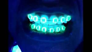 35 year old with glow in the dark braces under black light ...