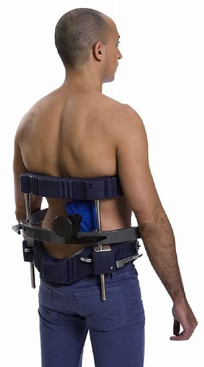 Scoliosis Dynamic System Brace 2000 Device Cervico