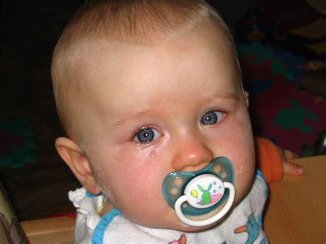 Filecrying Baby 2 Wikimedia Commons