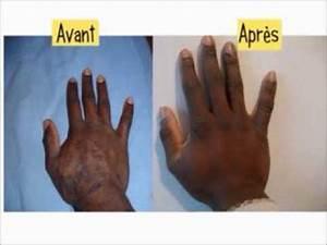 mycose des ongles main