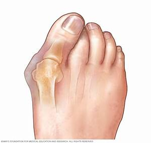 Bunions Disease Reference Guide