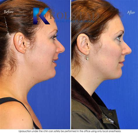 chin neck liposuction san diego chin neck