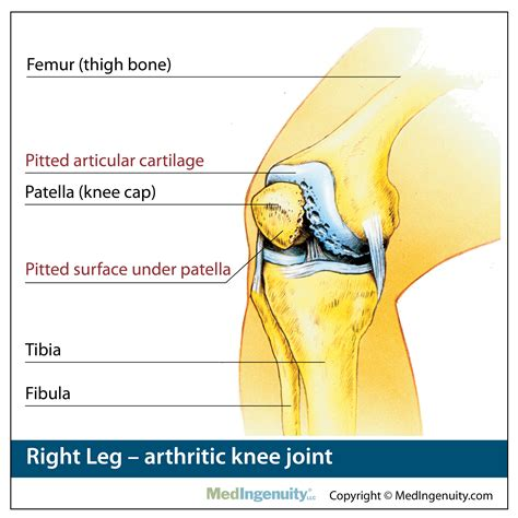 orthopedic anatomy library northwest hills surgical hospital  austin tx